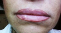 Full Lips/Correction BEFORE