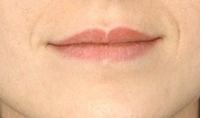 Full Lips BEFORE