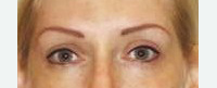 Eyebrows & Eyeliner AFTER