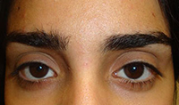 Eyebrows Shaping BEFORE