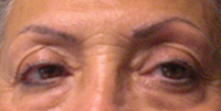 Eyebrows BEFORE