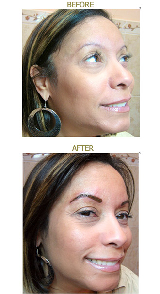 before-after-eyebrow5