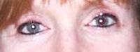 Eyeliner, Lower & Upper AFTER