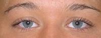 Eyeliner, Lower & Upper BEFORE
