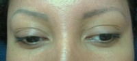 Eyebrows/Correction BEFORE