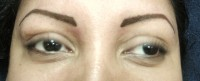 Eyebrows/Correction AFTER