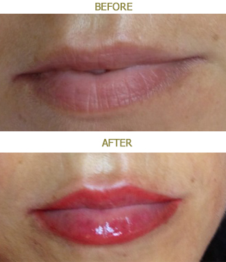 permanent_makeup_lips2