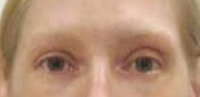 Before & After Permanent Makeup - Eyebrows, Eye Liner, Lip Liner, Full Lips, Beauty Mark