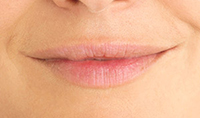 Permanent Makeup - Lips Before